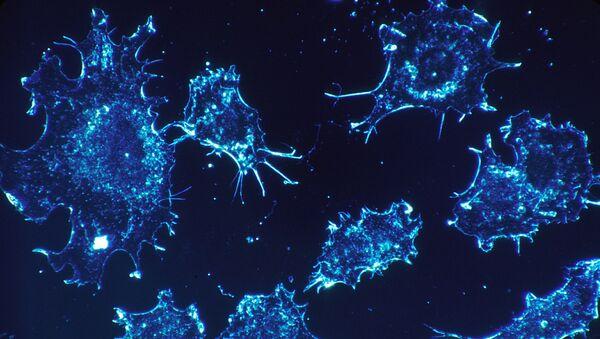 Des cellules cancéreuses - Sputnik France