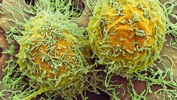Cellules cancéreuses - Sputnik France
