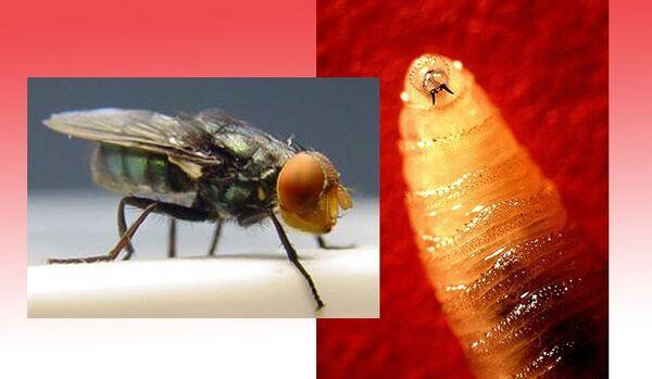Des larves dans la tête étaient le résultat d'un voyage au Pérou pour une Britannique - Sputnik France