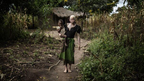 Albinos africains - Sputnik France