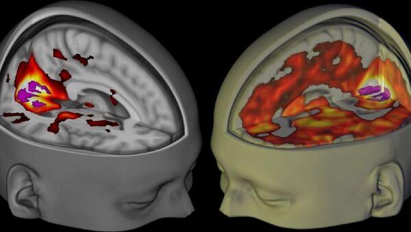 L'image montre le cerveau des sujets se trouvant éveillé, les yeux fermés, sous l'influence d'un placebo et du LSD lorsqu'ils sont examiné en utilisant l'IRM - Sputnik France