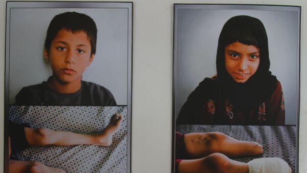 Scars of War: Images of Afghan Anatomy - Sputnik France