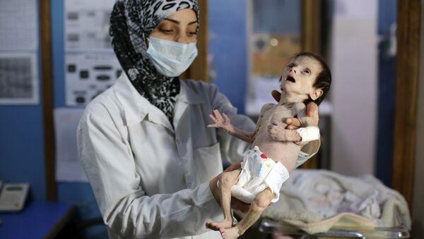 Un enfant syrien souffrant de malnutrition - Sputnik France