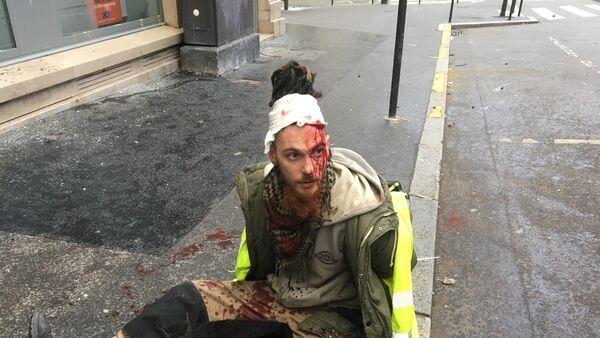 Un manifestant blessé à la tête avenue Monceau - Sputnik France
