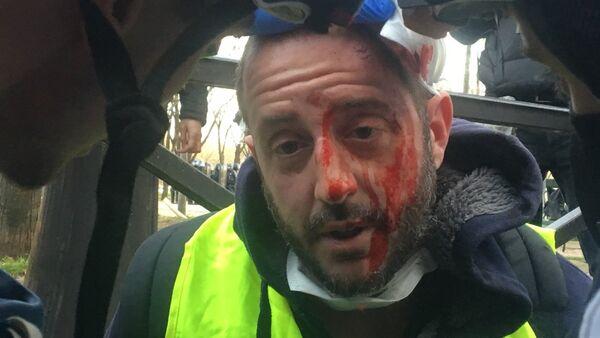 Un manifestant blessé lors de l'Acte 14 des Gilets jaunes à Paris - Sputnik France
