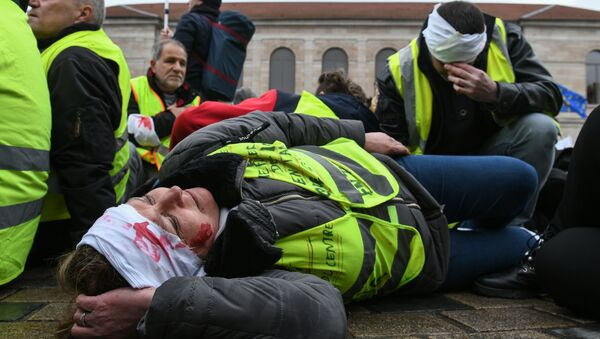 A protester with fake head injuries lays down the street during an anti-government demonstration called by the Yellow Vests (Gilets jaunes) and the White Coats (Blouses blanches) in Besancon, eastern France, on March - Sputnik France