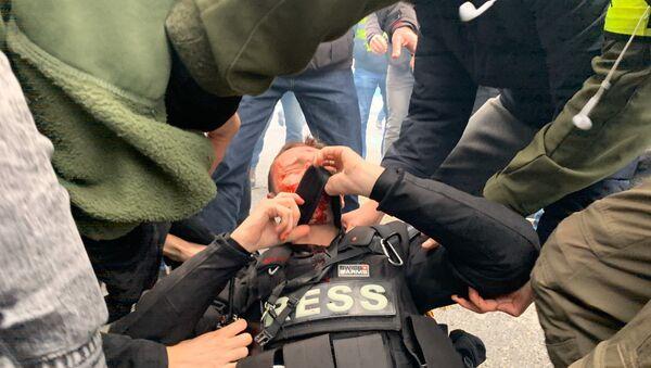 Journaliste blessé au visage pendant l'acte 53 des gilets jaunes, le 16 novembre 2019 - Sputnik France